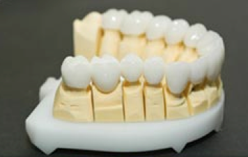 Corona dentale in Zirconio